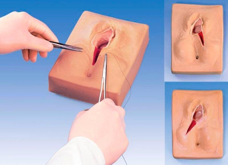Trung bình cho việc khâu lại vết cắt tầng sinh môn ấy thường kéo dài 20 phút.
